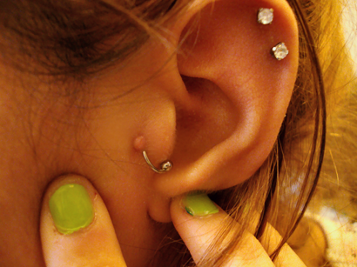 How-to-Heal-Piercing-Bumps